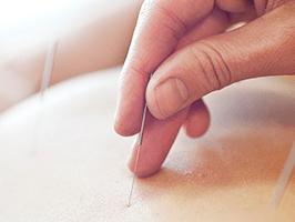 curso medicina china acupuntura
